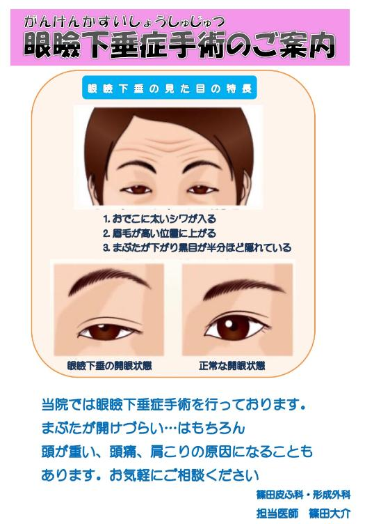 当院では、眼瞼下垂症手術を行っております。 まぶたがあけづらい・・・はもちろん頭が重い、頭痛、肩こりの原因になることもあります。 お気軽にご相談下さい。